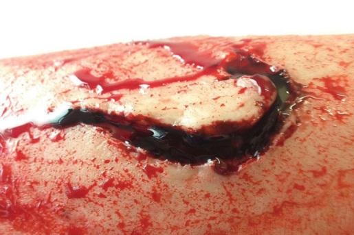 close-up-of-deep-flesh-wound
